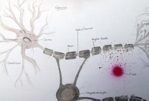 Neuron under attack